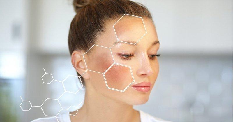Điều trị nám bằng laser có hiệu quả không?