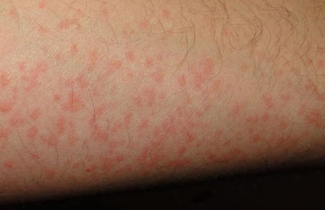 Nổi vết đỏ trên da vào mùa hè là dấu hiệu của bệnh gì?
