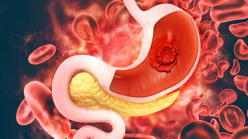 điều trị ung thư dạ dày giai đoạn 1