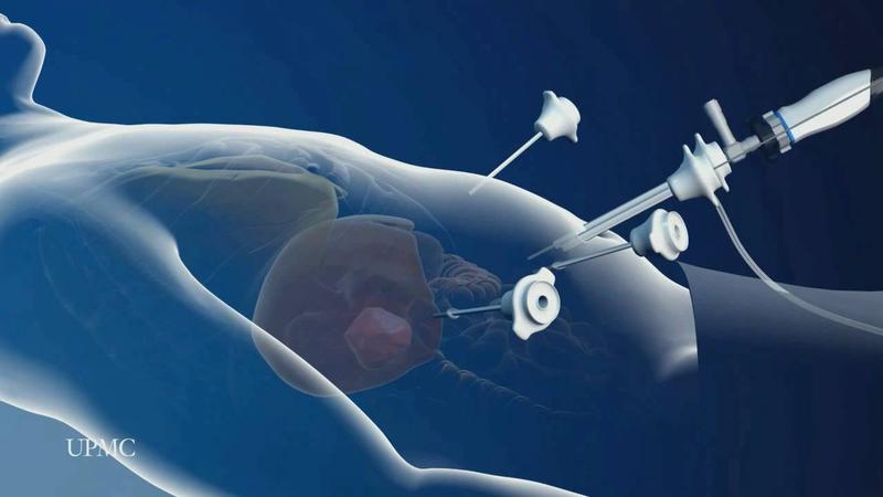 Phẫu thuật nội soi cắt gan thùy trái