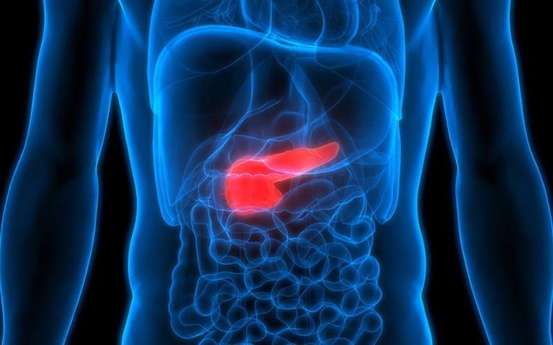Nguyên nhân gây viêm tụy cấp nặng