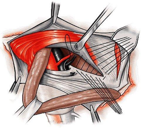 phẫu thuật thoát vị bẹn bằng phương pháp bassinia