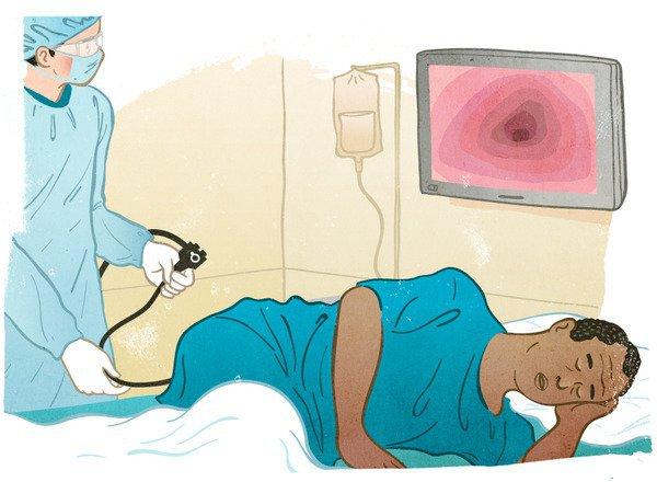 Nội soi trực tràng ống mềm cấp cứu