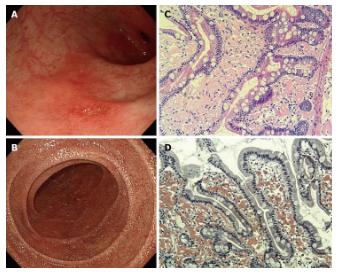 Biểu hiện trên nội soi dạ dày và mô bệnh học của bệnh amyloidosis