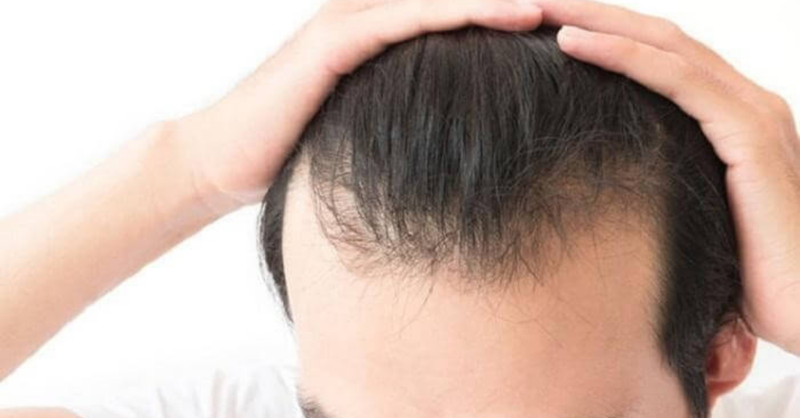 rụng tóc nhiều ở nam