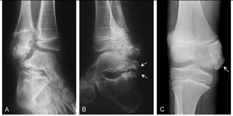 Tổn thương xương trên hình ảnh X Quang