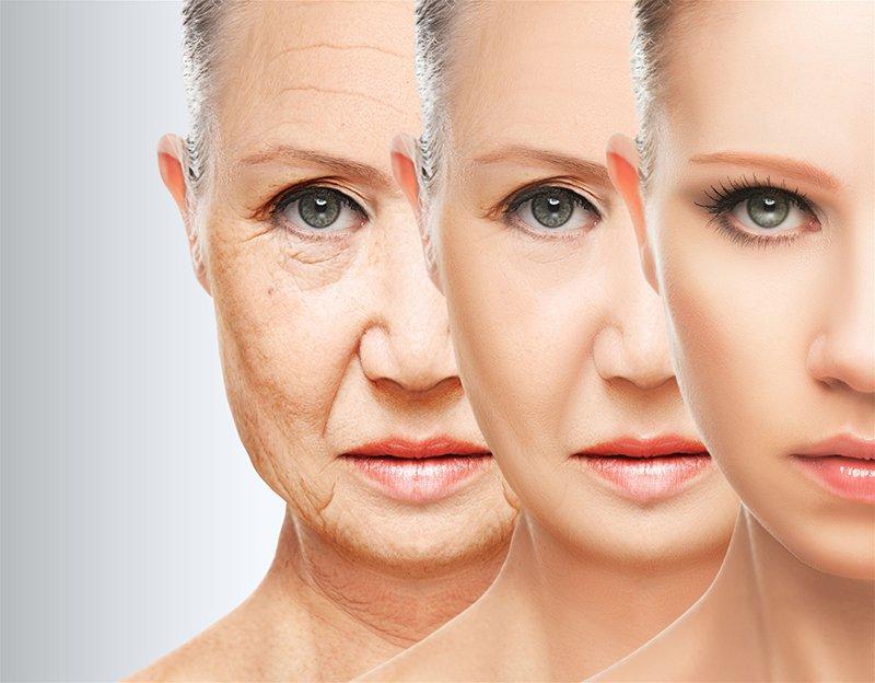 Căng da mặt toàn phần và những điều cần biết   Vinmec