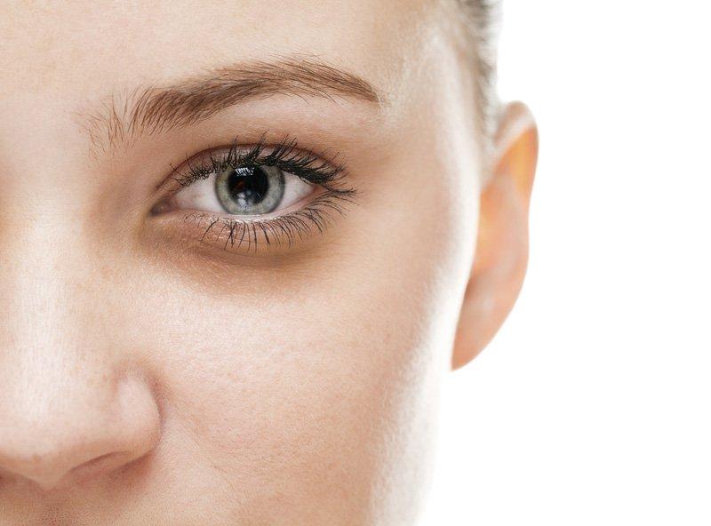 mắt thâm quầng là biểu hiện của bệnh gì
