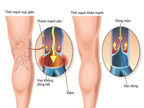 Tìm hiểu về phẫu thuật cắt mạch máu
