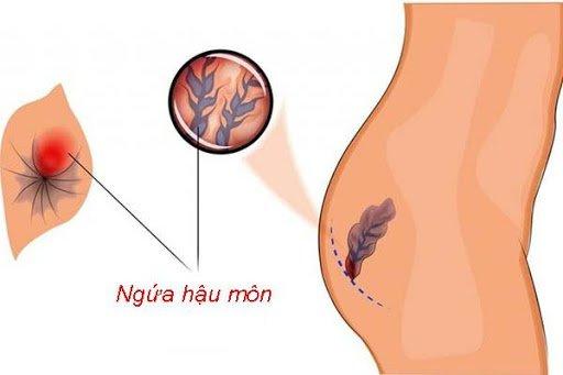 Ngứa rát hậu môn là dấu hiệu của bệnh gì?