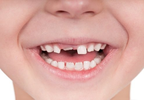 Trẻ 9 tuổi chưa mọc răng cửa có sao không?