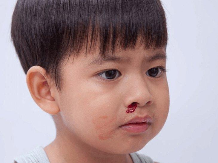 Trẻ thỉnh thoảng bị chảy máu cam có nguy hiểm không?