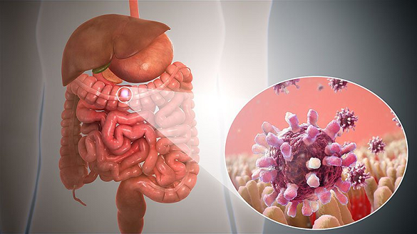 Chế độ ăn cho người mắc viêm hạch mạc treo như thế nào?