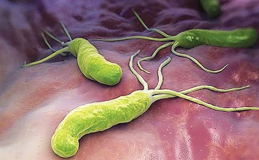 vi khuẩn h. pylori