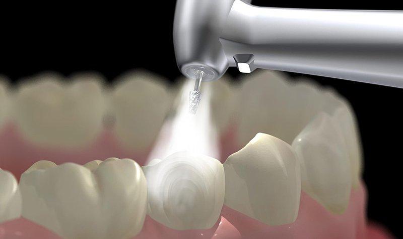 Ê buốt răng sau khi trám răng phải làm sao?
