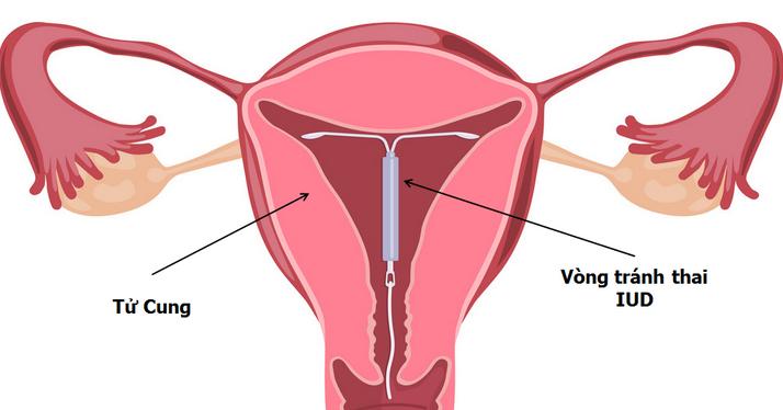 Quan hệ với chồng bị ra máu sau khi đặt vòng tránh thai 2 ngày có sao không?