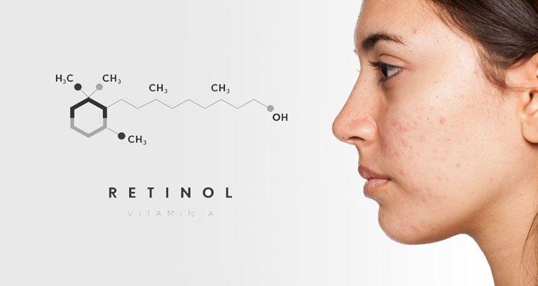 Công dụng của Retinol