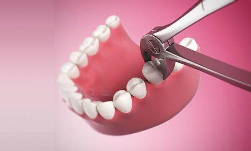Nguyên nhân và cách điều trị đau đầu sau nhổ răng số 7 hàm dưới là gì?