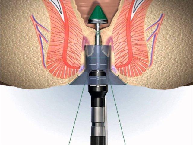 Dùng thuốc phòng ngừa bệnh trĩ sau phẫu thuật longo được không?