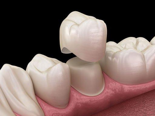 Có nên bọc răng sứ thẩm mỹ cho hàm hô hay không?