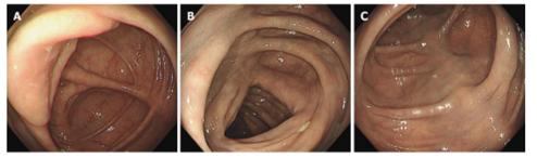 Các hình ảnh nội soi bệnh nhân có xơ vữa mạc treo tự phát. Hình A-C: Nội soi đại tràng trường hợp 3 cho thấy có sự đổi màu xanh nhạt ở đại tràng ngang