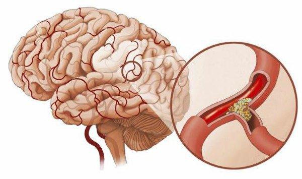 điều trị huyết khối tĩnh mạch não