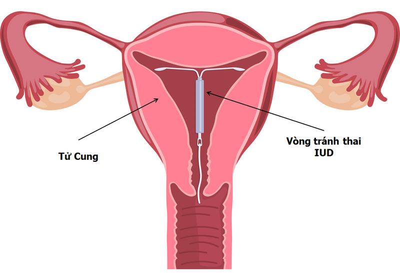 Vòng tránh thai có giảm nguy cơ sa tử cung không?