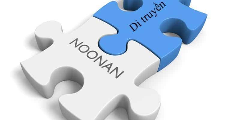 Hội chứng Noonan