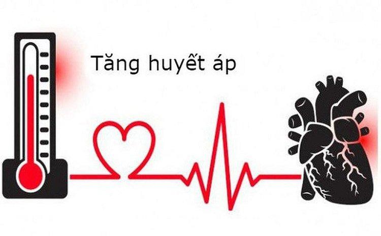Nguyên nhân gây bệnh huyết áp cao là gì?