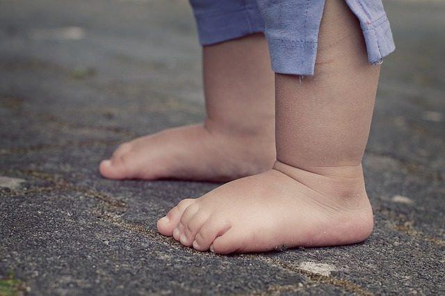 Ngón chân nghiêng sang trái