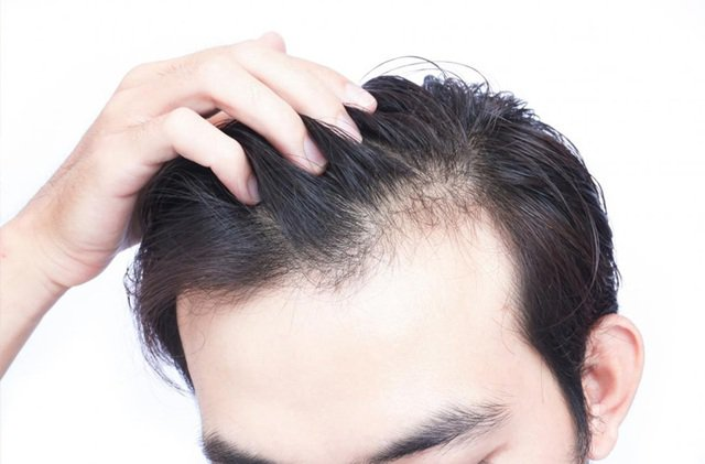 Nguyên nhân rụng tóc ở đỉnh đầu là gì?