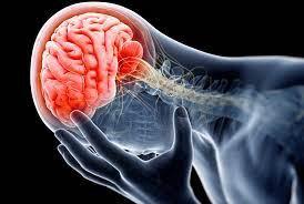 Di chưng sau chấn thương sọ não