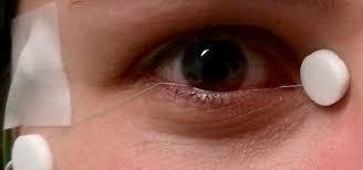 điện sinh lý mắt