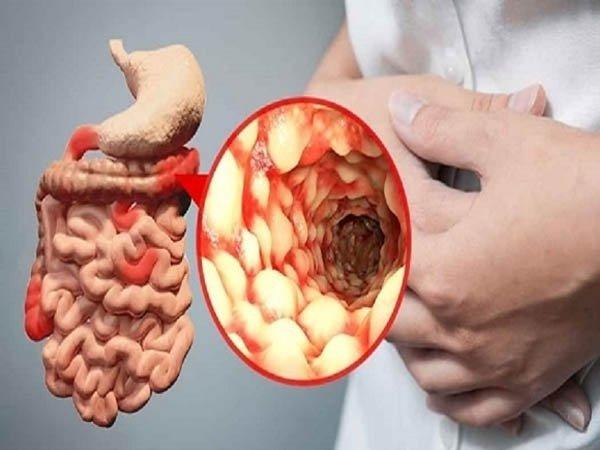 bệnh crohn