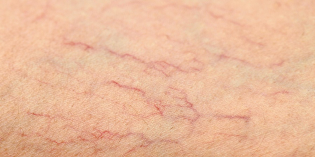 Nổi mạch máu li ti ở chân, tê chân khi ngủ là dấu hiệu bệnh gì?
