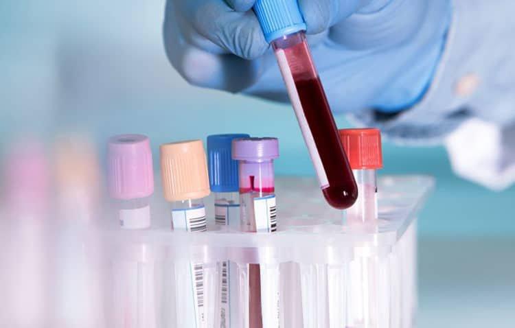 Xét nghiệm máu có chẩn đoán được nhiễm viêm gan B, C, HIV không?