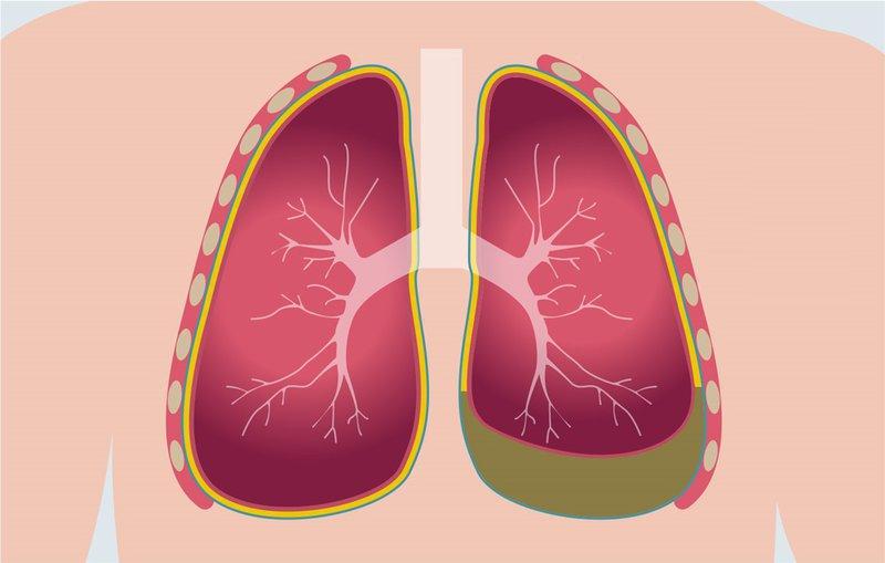 Điều trị ổ cặn màng phổi không phẫu thuật như thế nào?