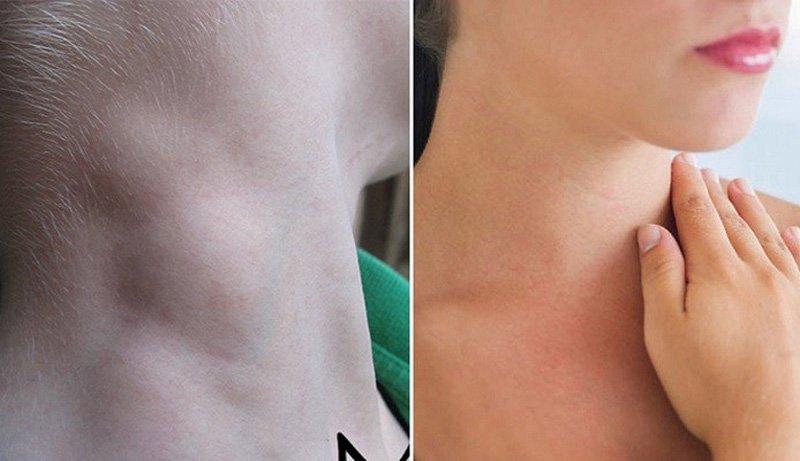 Hạch cổ viêm và hạch trước tai có nguy hiểm không?