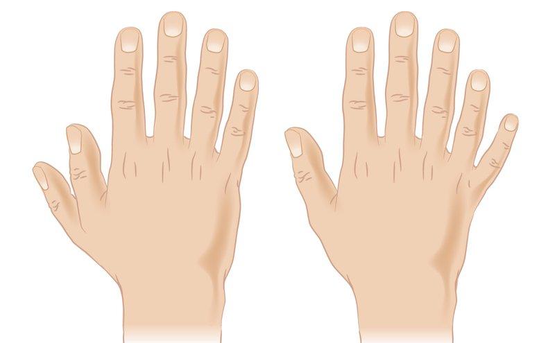 trẻ sinh ra có bàn tay 6 ngón nguyên nhân là gì