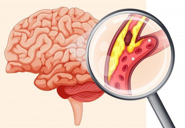 Tắc nghẽn mạch máu não có gây đau đầu không?
