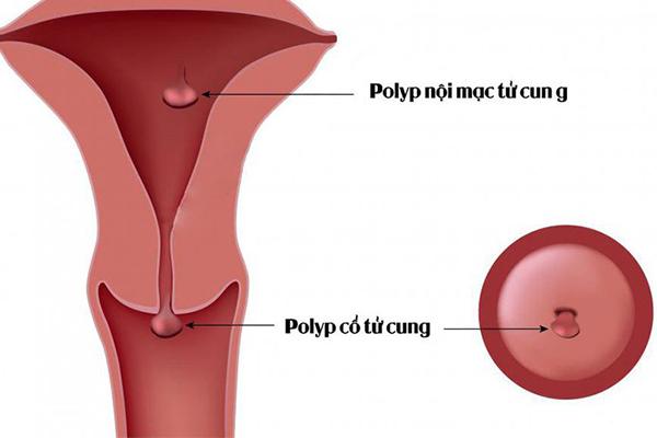 Khi nào nên mổ Polyp cổ tử cung?