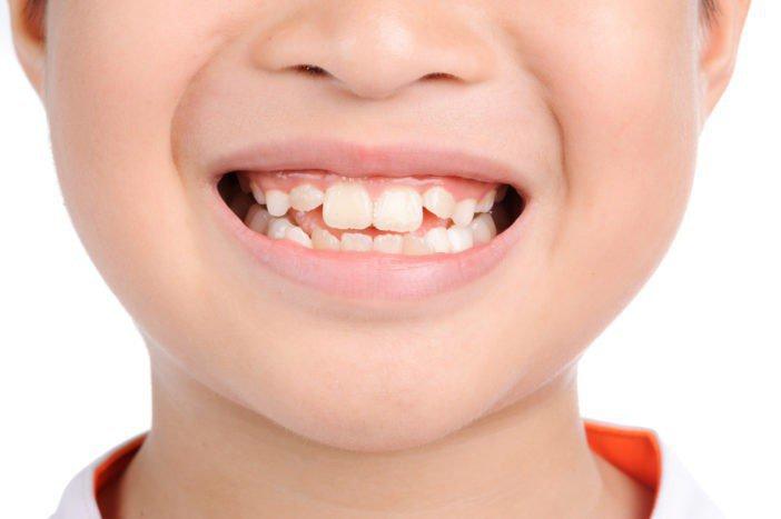 Răng mọc chậm nguyên nhân là gì?
