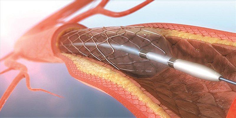 stent động mạch vành