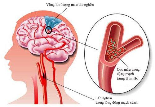 tưới máu não