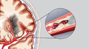 Tắc mạch máu não có nguy hiểm không?