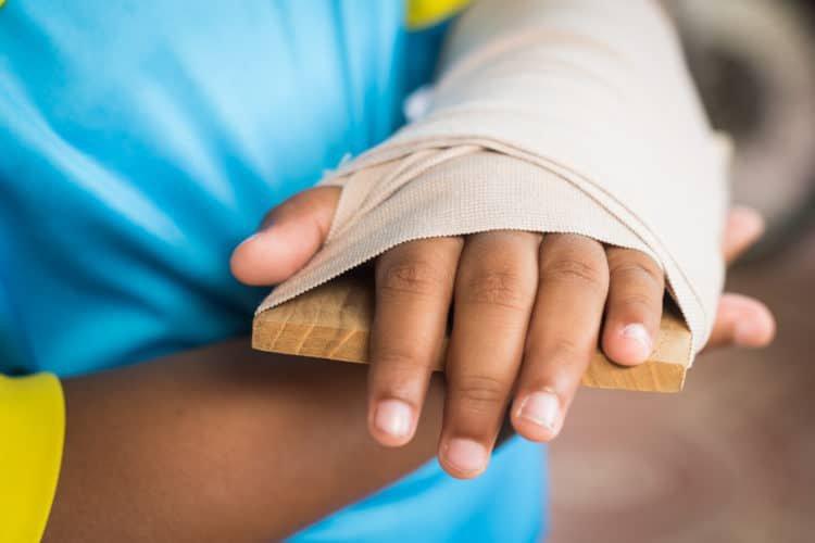 Sau nẹp gãy rời xương cẳng tay bị kích ứng nẹp có sao không?