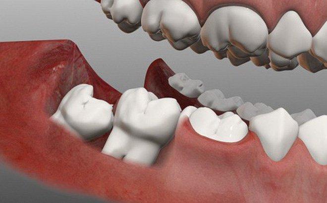 Răng khôn mọc lệch