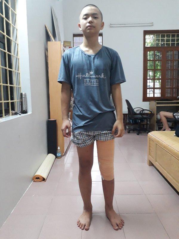 Hồi sinh đôi chân cho bé trai 13 tuổi
