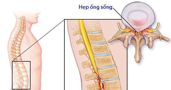 Hẹp ống sống lưng N4, N5 có điều trị dứt điểm được không?