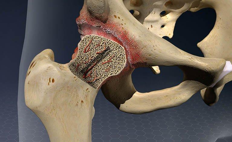điều trị hoại tử chỏm xương đùi